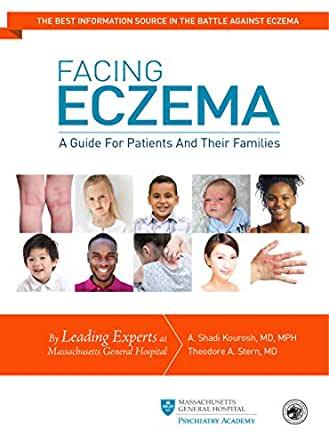 Facing Eczema